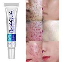 Bioaqua Acne Treatment Blackhead Remova Anti Acne Cream Oil Control Shrink Pores Acne Scar Remove Face Care Gel 30G